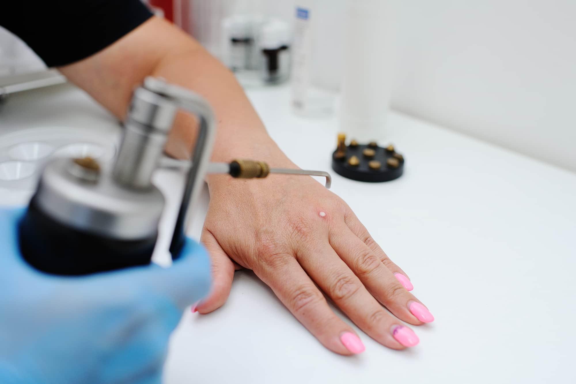Удаление папиллом в СПб – лазерное лечение папиллом и кондилом